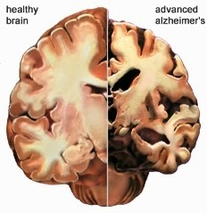 Alzheimer's Disease And Stem Cell Therapy