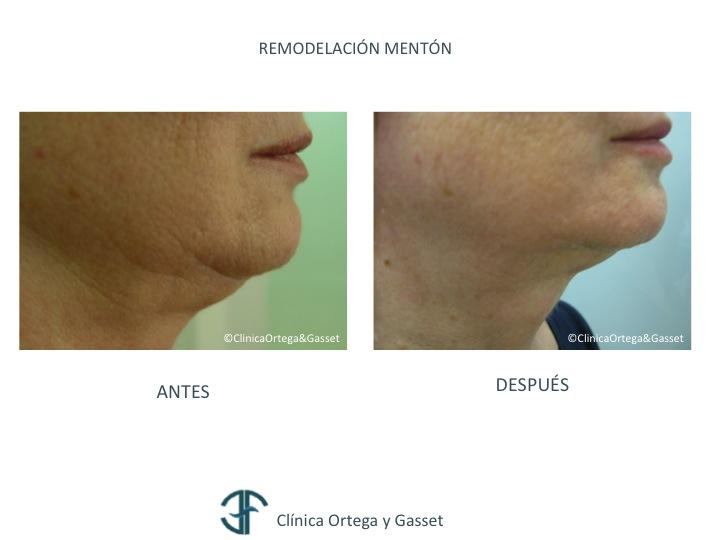 Blog de la Dra. M. Elena Fernández