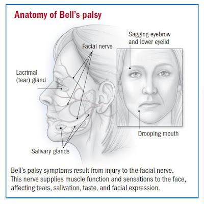 vivx untuk Bell Palsy