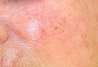 couperose skin