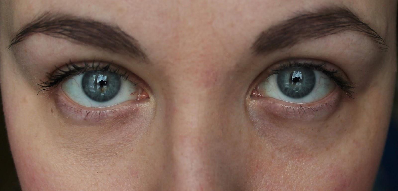 Как сделать так чтоб небыло синяков под глазами