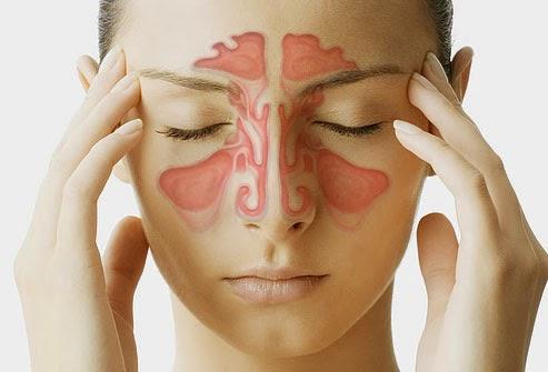 thuốc chữa bệnh viêm xoang mũi và cách điều trị hiệu quả