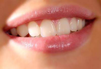 Những lưu ý khi làm răng gỉa