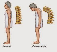 http://herbalnya.blogspot.com/2014/05/obat-herbal-osteoporosis.html
