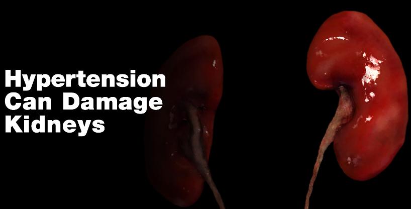 Hypertension And Kidney Damage