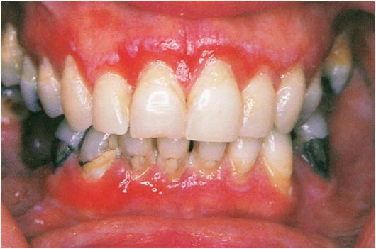 dentistry lectures for mfdsmjdfnbdeore dermatologic