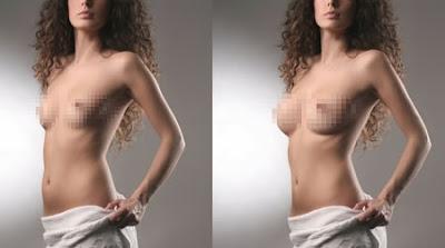 göğüse silikon taktırma fiyatı, memelere silikon taktırmak ne kadar, göğüs silikonu fiyatı nedir, meme implantı