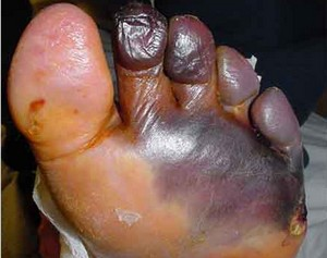 Gangren Pada Diabetes