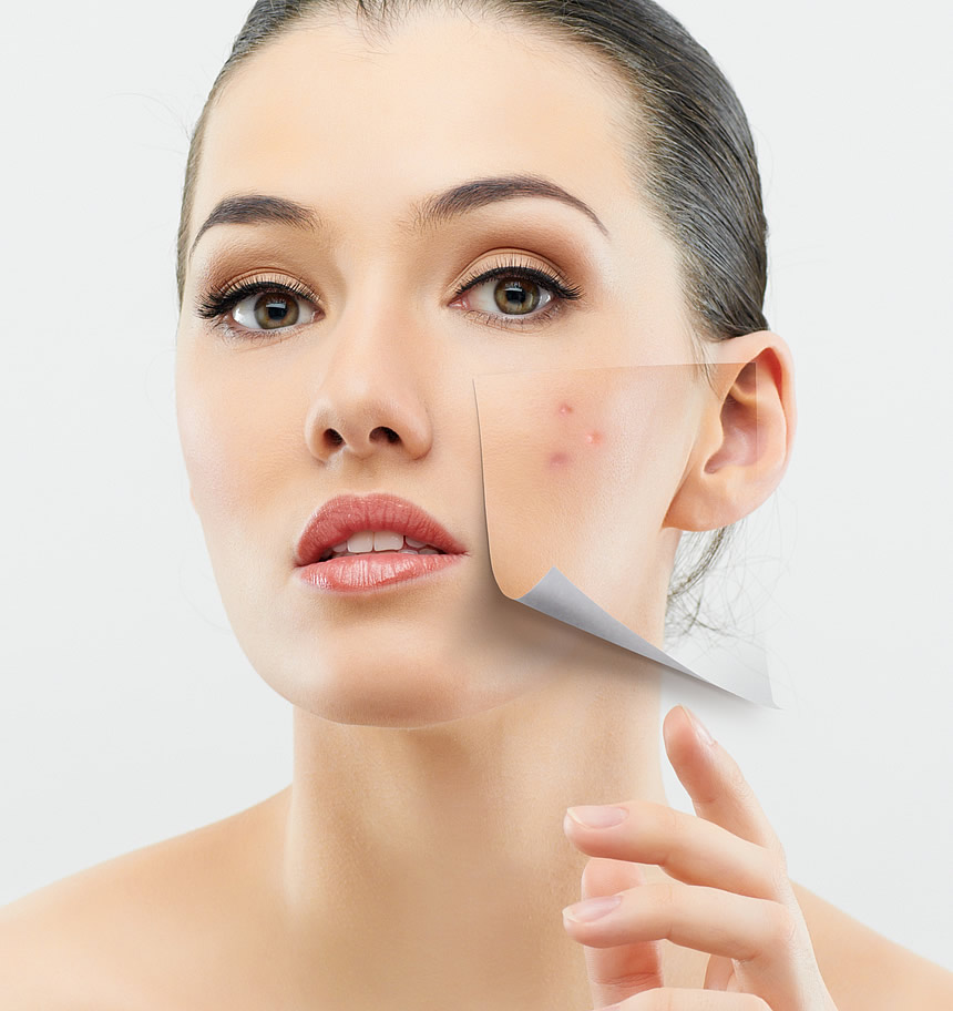 What is Acne Purging?