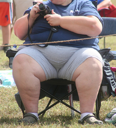 Causes and symptoms of obesity