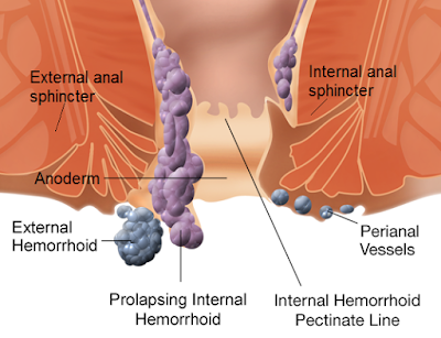 Visual-Image-of-External-and-Internal-Hemorrhoids