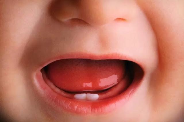 Rumus dan Jumlah Gigi Susu Anak , Fungsi dan Waktu Tumbuhnya