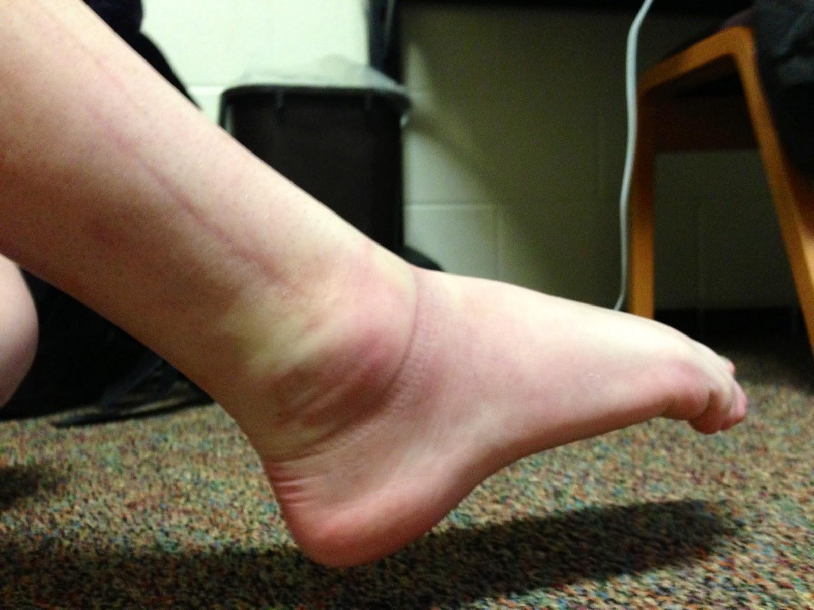 walking after broken ankle