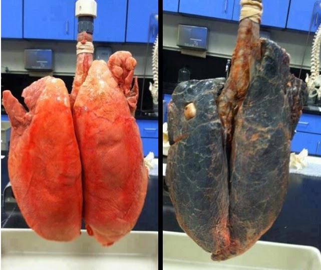 Le sigarette fumanti smesse fumo un tubo