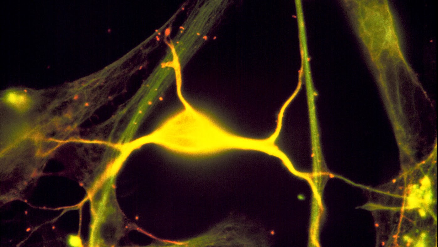 Animal Study Points To A Treatment For Huntington's Disease