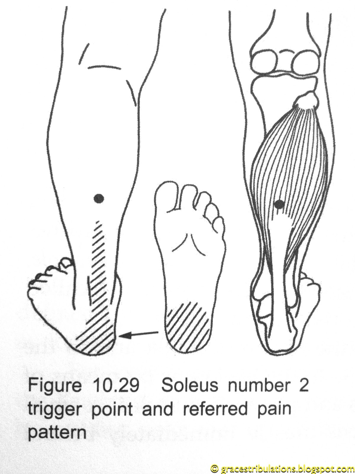 Grace's Tri-bulations: Trigger Point Plantar Fasciitis ...
