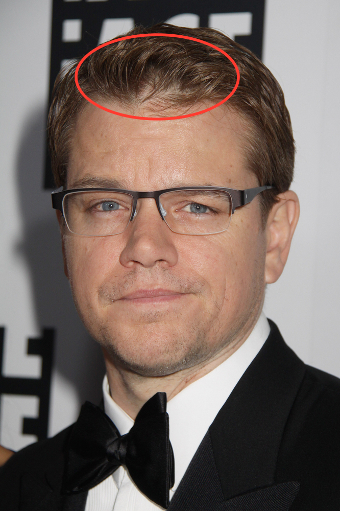 Celebrity Hair Loss Is Matt Damon Treating His Hair Loss