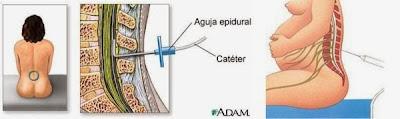 como se pone la epidural