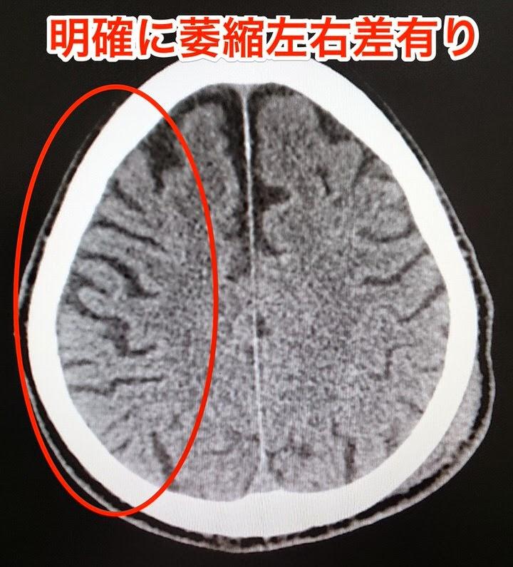 皮質基底核変性症(CBD)の頭部CT画像。