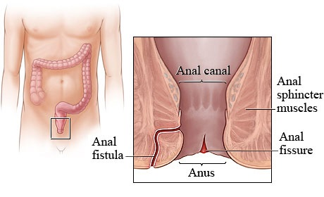 Bowel infection after anal sex