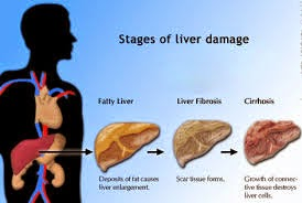 Symptoms Causes Signs Liver Disease