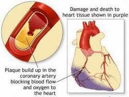 penyumbatan aliran darah jantung