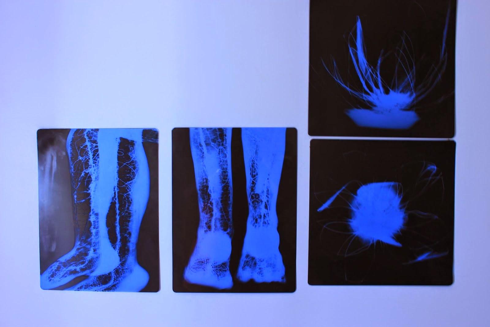 Fluorescência da infância e das flores pelo raio X Um olhar contemporâneo sobre a escultura.