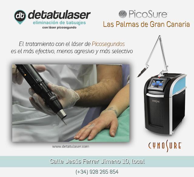 Eliminación de tatuajes con PicoSure de Cynosure en Detatulaser de Las Palmas de Gran Canaria