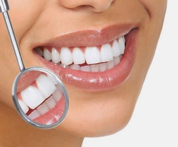 Duracion de las carillas dentales