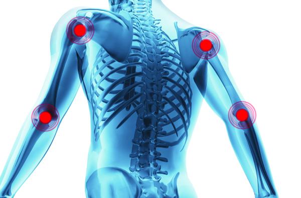Artritis: Dolor de las articulaciones, rodillas, caderas, hombros ...