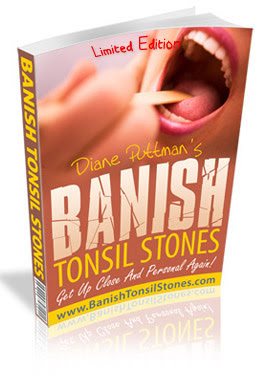 Tonsil Bad Breath Cure : Tonsil Stones Remedies - Excellent Steps To Remove  Your Tonsil Stones Safely