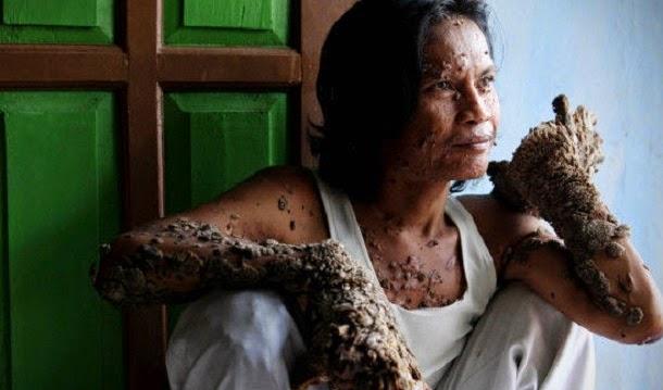 Epidermodisplasia verruciformis