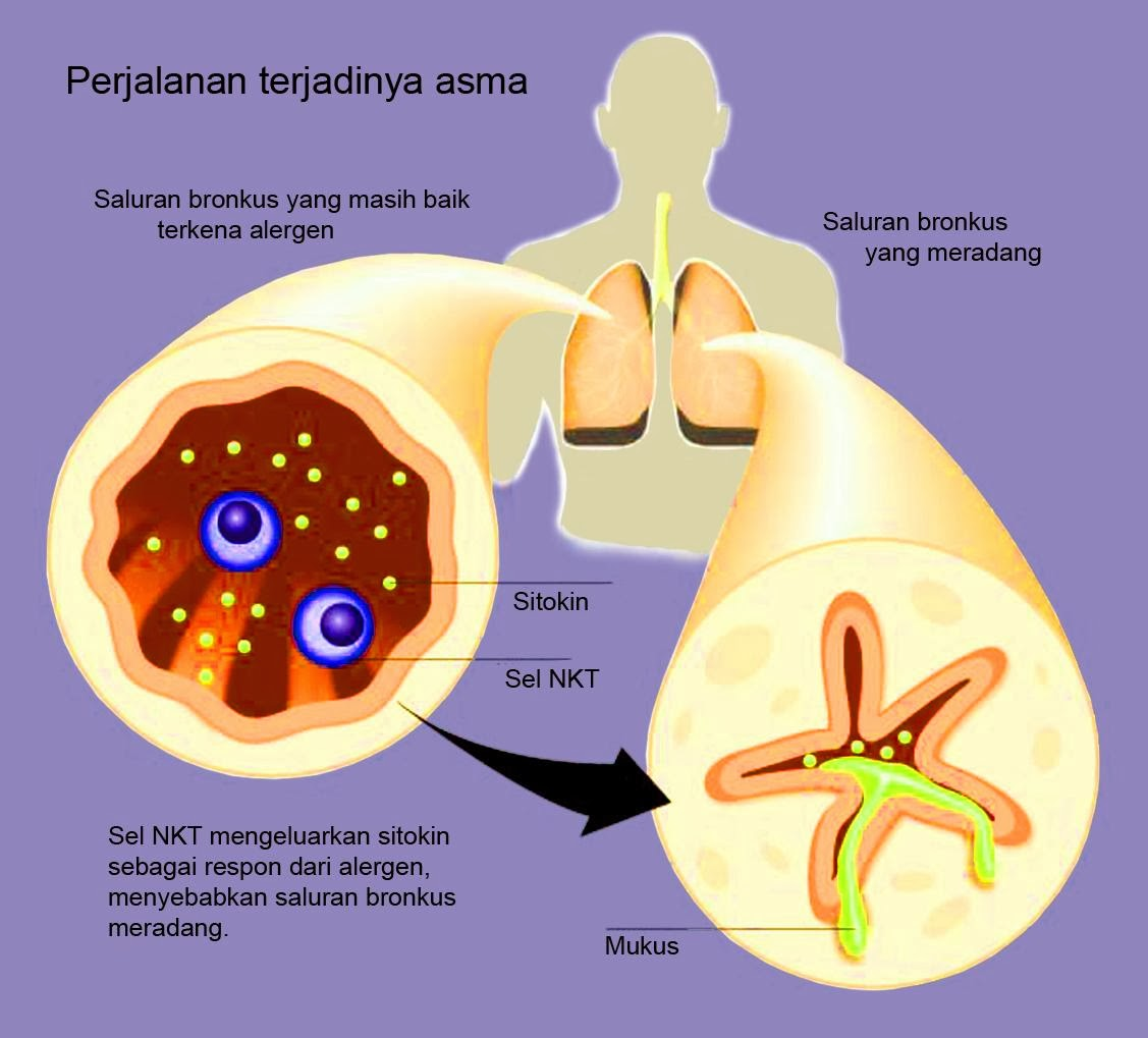 penyakit asthma sebab terjadi