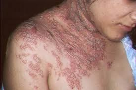 Penyakit Herpes Pada Punggung