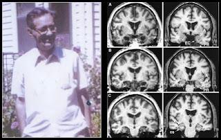 Timothy Verstynen Bradley Voytek - Zombie Research Society - zombie brain hippocampus