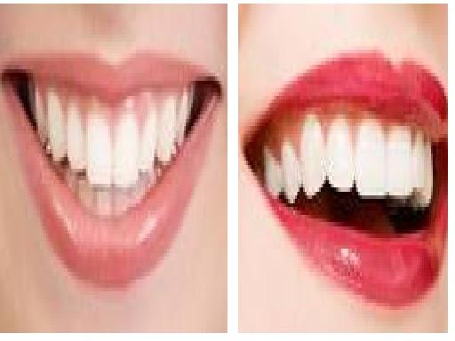 Alegober Blog Cara Membuat Gigi Menjadi Putih