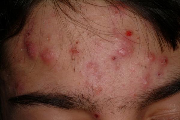 acne around mouth: Comment traiter l'acné kyste