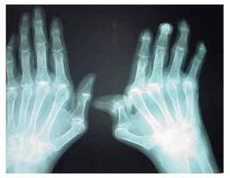 Laboratório Vital Brazil produzirá medicamento contra artrite reumatoide