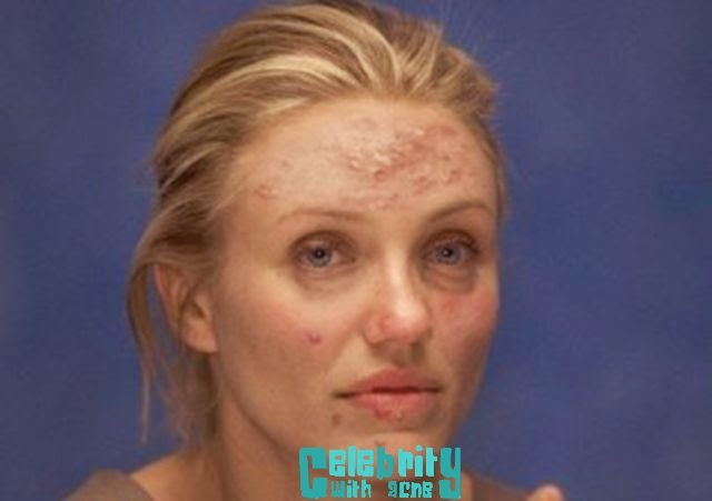 12 Ugly Celebrities - Pictures