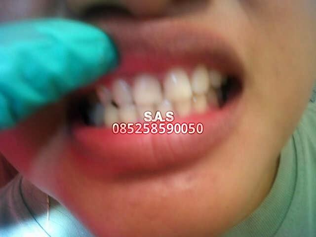 S A S Ahli Gigi Kota Pati Jateng Kota Jember Jatim Solusi