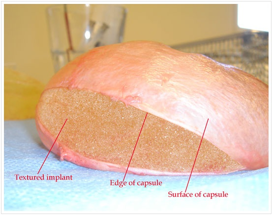 Capsular contraction breast implant