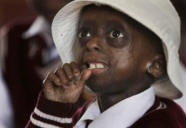 Ontlametse Falaste, Sang Gadis Cilik Berusia 12 Tahun Yang Terkena Penyakit Aneh Yang Membuat Tubuh Nya Kerdil [ www.BlogApaAja.com ]