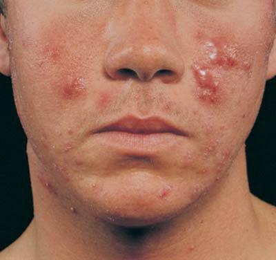 Lhistoire de la maladie par le psoriasis répandu
