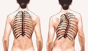 Tulang Bengkok/ Skoliosis