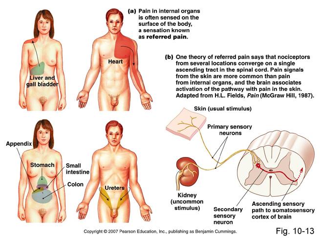 Referred Pain Medicalshamrhmedicalshamblogspot: Heart Pain Locations At Elf-jo.com
