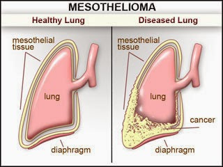 Mesothelioma - (The Raw Facts)