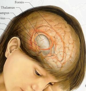 Mencegah Kanker Otak