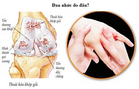 Dau-nhuc-xuong-khop-de-tai-phat-vao-mua-lanh-www.c10mt.com