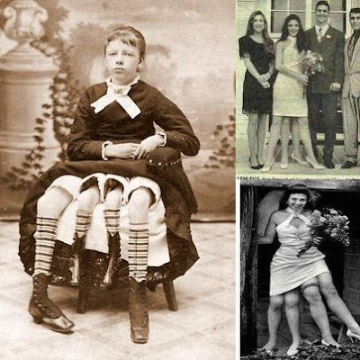Myrtle Corbin - The Four-Legged Woman