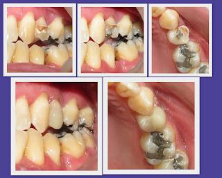 reconstruccion diente roto fracturado